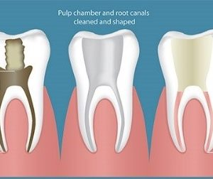 Root Canal Therapy - Empower Dental